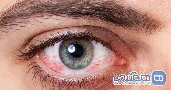 توصیه هایی برای سلامت چشم ها